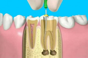 root-canal-01